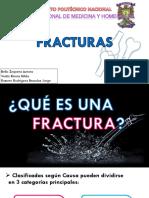 Fracturas Original