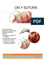 INCISION Y SUTURA.pptx