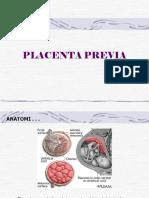 06 Placenta Previa