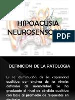 Expo Hipoacusia