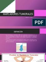 adenocarcinoma prostatico infiltrante gleason 4 3 9