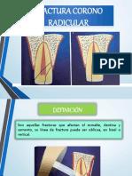 Ppt Fractura Corono-radicular