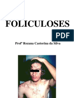 Acnes Foliculoses