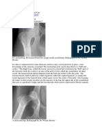 Hip Dislocation in Dogs and Cats (wendy brooks, DVM)