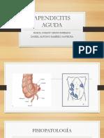 Apendicitis Aguda - Rotación de Cirugía