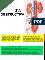 Uropatia obstructiva