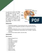 Mastoidectomía
