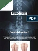 Escoliosis 110916104017 Phpapp01 Convertido