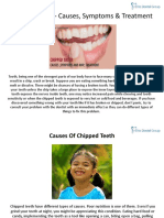 Chipped Tooth Causes Symptoms Treatment