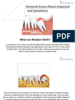 Wisdom Teeth Removal Know About Impacted Symptoms