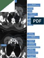 Anatomia Radiológica TORAX-1