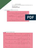 Taller Electrocardiografía.docx
