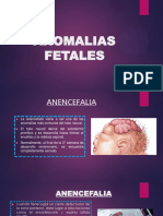 anomalias fetales