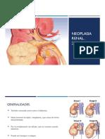 Neoplasias Renal y Vesical