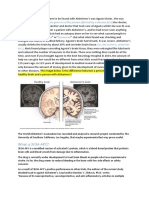 Alzheimer's Case Study