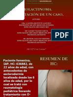 Eb Prolactinoma