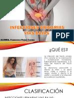 Infecciones Urinarias Bajas