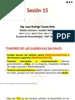 TUMORES DE LAS GLÁNDULAS SALIVALES