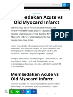 Membedakan Acute vs Old Myocard Infarct133851