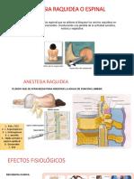 Anestesia Raquidea o Espinal