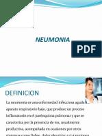 neumonia-161212004344