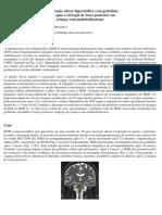 Degeneração Olivar Hipertrófica Com Gadolínio - 2014