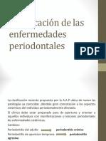 clasificaciondelasenfperiodontales