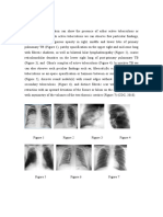 TBC Radiography