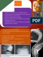 diagnostico de la luxacion de rodilla