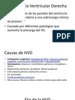 Hipertrofia Ventricular Derecha y Ekg de Pericarditis