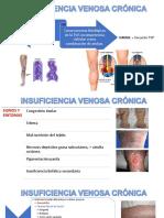 Insuficiencia Venosa Crónica y Trombosis Venosa Profunda y Superficial