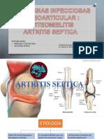 Artritis Infecciosa y Osteomielitis