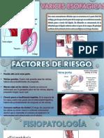 Varices Ensofagica 2019
