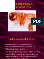 245919984 Endometrioza Si Adenomioza