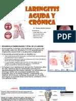 Laringitis Aguda y Crónica