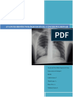 Avances Biotecnológicos en El Cancer Pulmonar - Copia