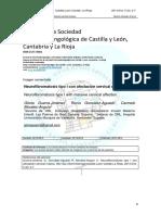 Dialnet-NeurofibromatosisTipoIConAfectacionCervicalMasiva-4756728.pdf