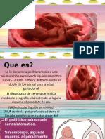 POLIHIDRAMNIOSmarina y eduardo.pptx