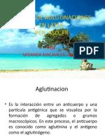 PRUEBAS DE AGLUTINACIONES  EN LÁTEX PPP