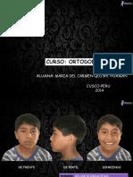 Ortodoncia II- Trabajo Final
