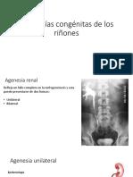 Anomalías congénitas de los riñones.pptx