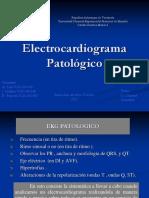 Ekg Patologico2