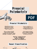 Preaxial Polydactyly