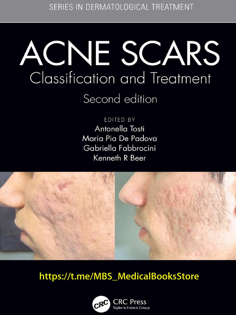 Acne Scars Classification And Treatment 1 Pdf Scar Inflammation