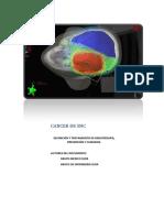 Tumores Cerebrales o de Sistema Nervioso Central Snc