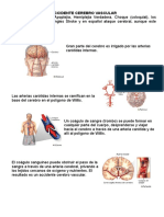 ACCIDENTE CEREBRO VASCULAR.doc
