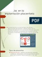 Anomalías  en la implantación placentaria.pptx