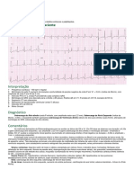 Eletrocardiogramas - Medicinanet