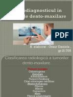 Radiodiagnosticul-in-tumorile-dento-maxilare.pptx
