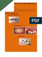 Dampak Diabetes Melitus Pada Rongga Mulut